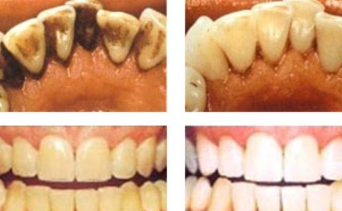 Help me become a Dental Hygienist