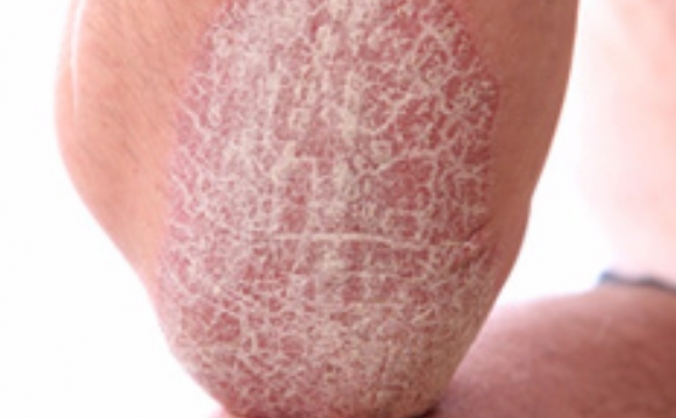 Psoriasis Improvement