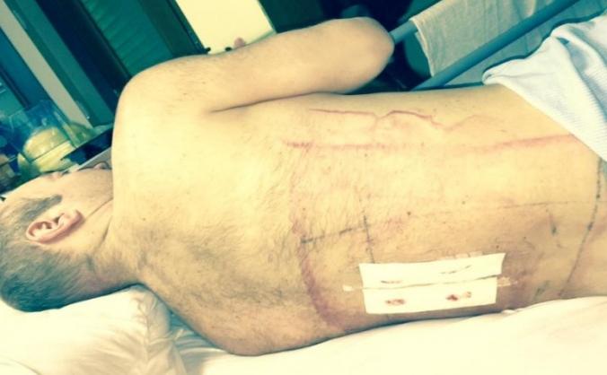 Cyclist knocked down by motorist - broken back