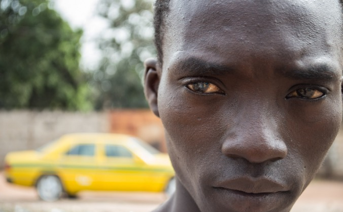 Life-Changing eye surgery for Bakary