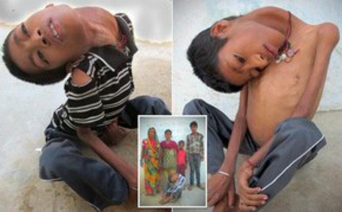 Mahendra Ahirwar 'cursed' with no neck muscles