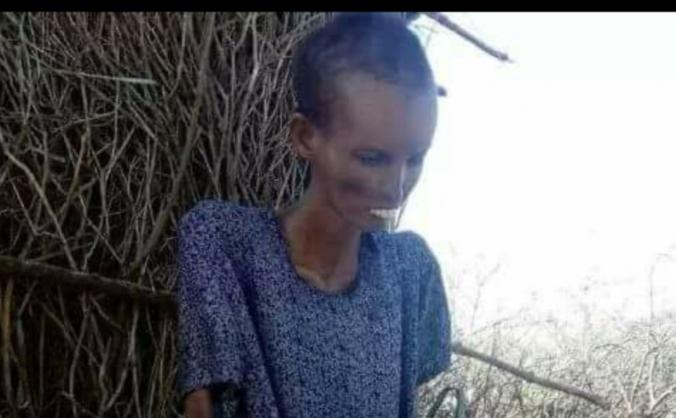 *EMERGENCY SOMALIA APPEAL*