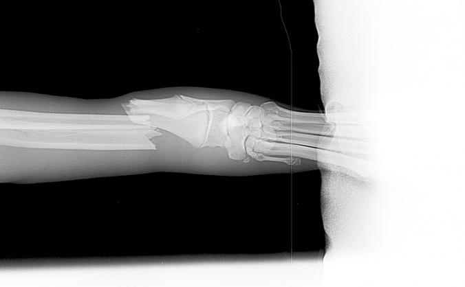 Jake's leg repair