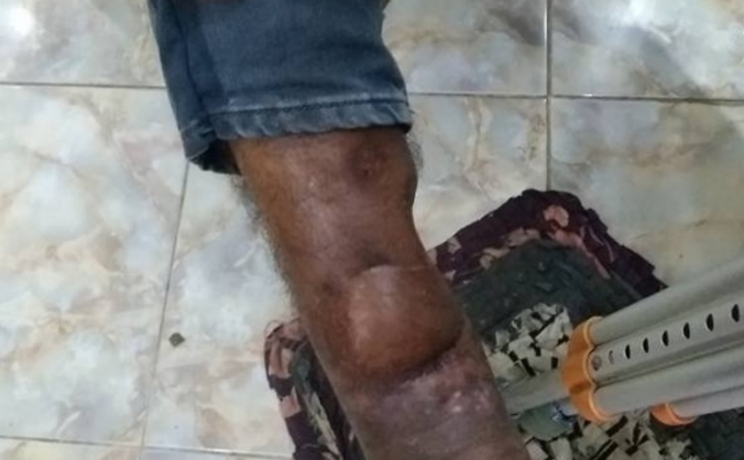 Help Varesh Walk Again