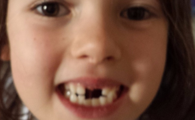 Tooth fairy homelessness project