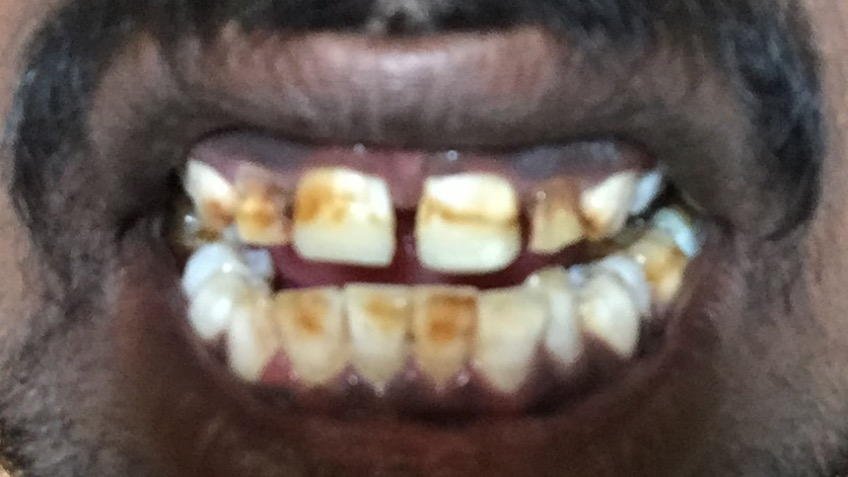 Help for fluorosis treatment