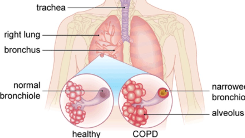 COPD and my beautiful mother.